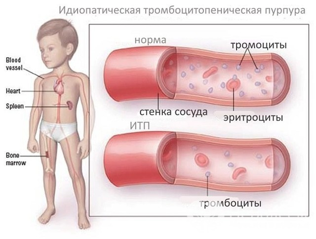Болезнь Верльгофа у детй: причины, диагностика, лечение