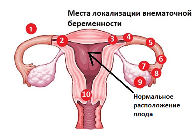 Внематочная беременность после ЭКО: признаки и симптомы, есть ли шанс забеременеть?