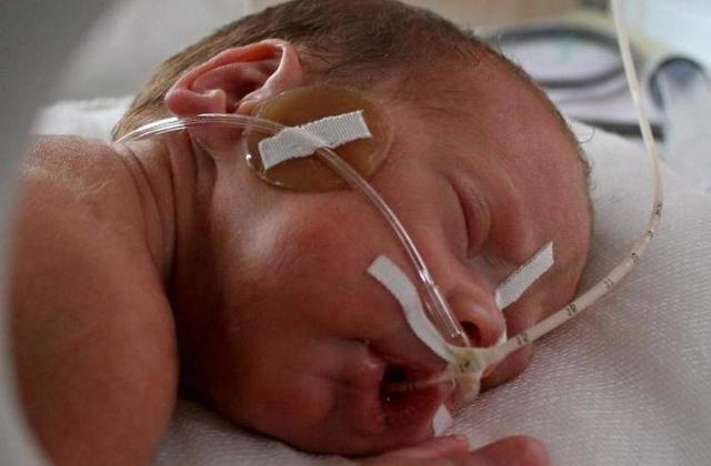 Гипоксия у новорождённых: причины, симптомы, лечение