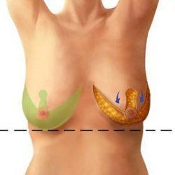 Одна грудь больше другой при кормлении грудью: что делать