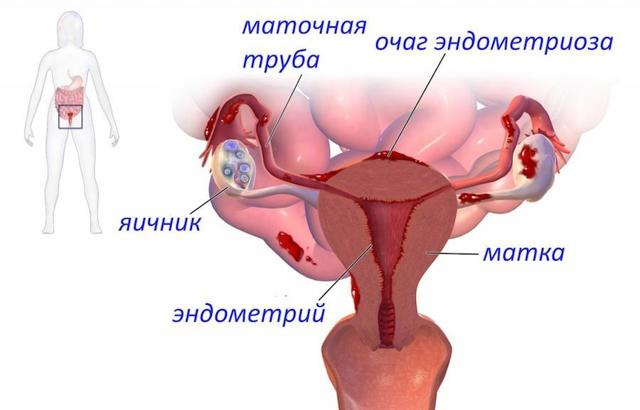 Эндометрит и беременность: причины, симптомы, лечение, опасность