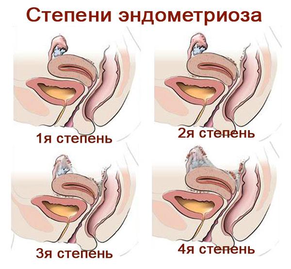 Эндометриоз и беременность: особенности их влияния друг на друга