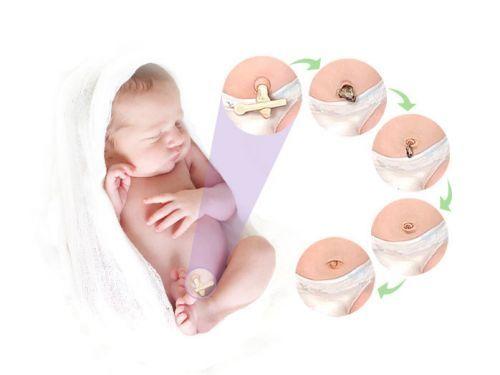 У новорождённого не заживает пупок: сроки, причины, профилактика