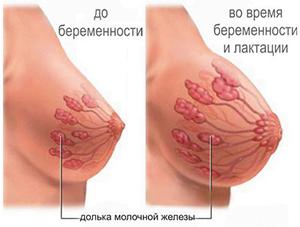 Как избежать растяжек и сохранить форму груди после родов
