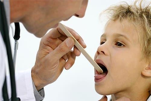 Виды, симптомы и лечение стоматита у детей
