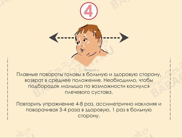 Причины и симптомы кривошеи у детей первого года жизни