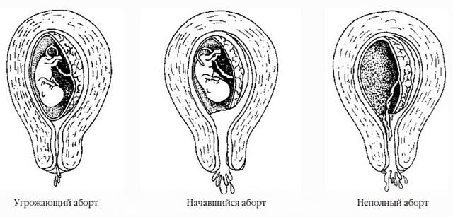 Сальпингоофорит и беременность: причины, симптомы, стадии, диагностика, лечение