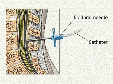 Как делают эпидуральную анестезию