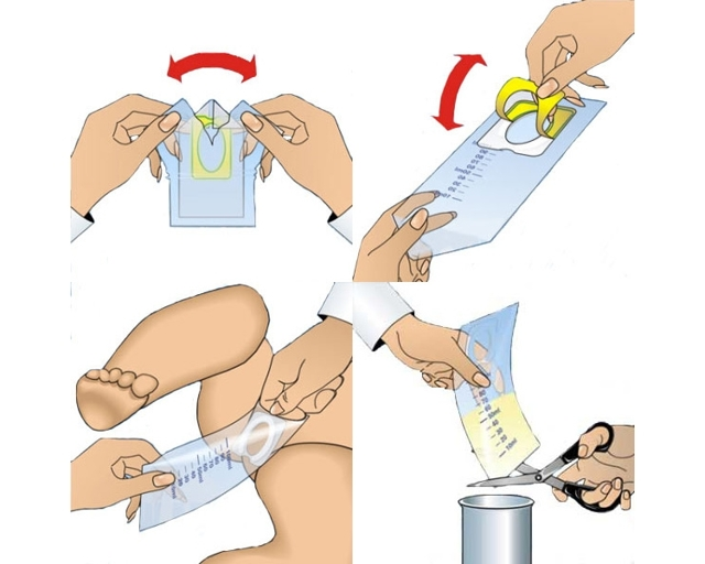Как собрать мочу у грудничка: с мочеприемником, мочесборником, банкой