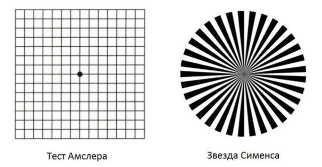 Астигматизм у детей: лечится или нет смешанный и гиперметропический астигматизм глаз?