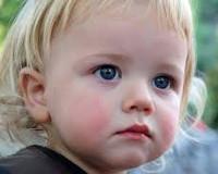 Причины диатеза у детей