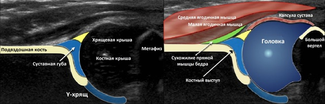 Диагностика дисплазии тазобедренных суставов