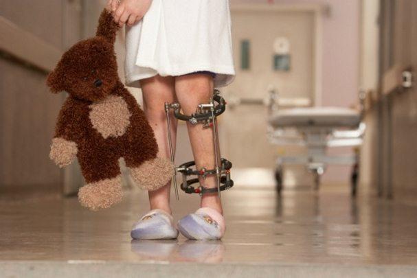 Симптомы и лечение ревматоидного артрита у детей