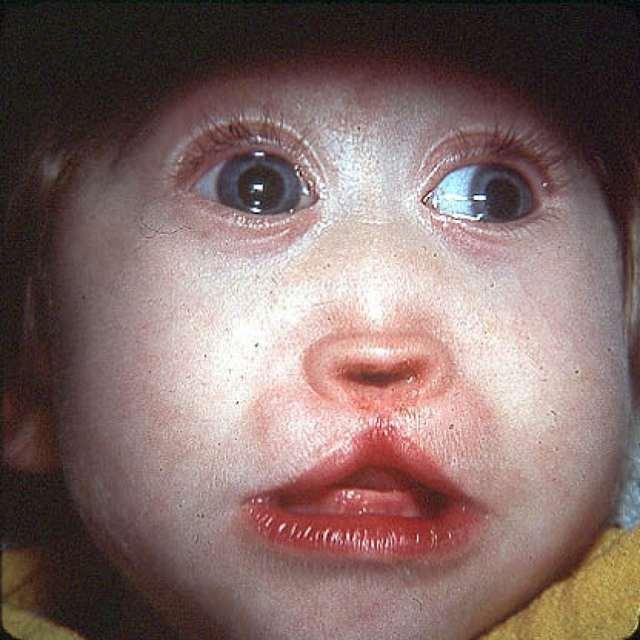 Синдром Патау: причины, диагностика, кариотип больного, фото
