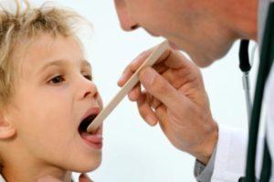 Гнойная ангина у детей: причины, симптомы, лечение, осложнения