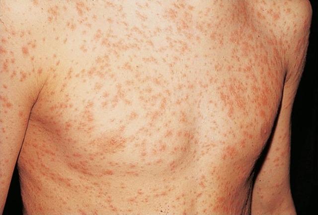 Виды сыпи при инфекционных заболеваниях у детей
