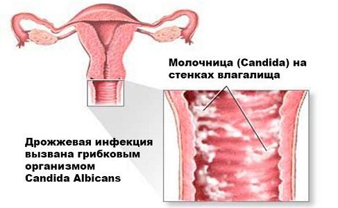Ранние признаки беременности до задержки месячных
