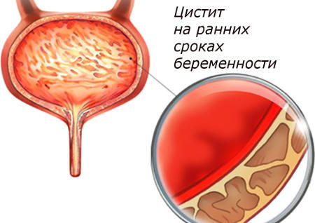 Цистит на ранних сроках беременности: причины и последствия
