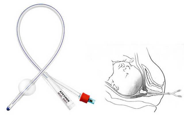 Подготовка шейки матки к родам в домашних условиях и роддоме