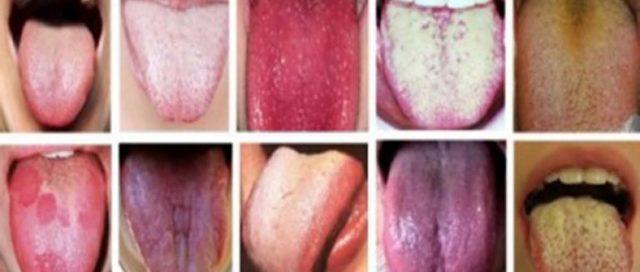 Налет на языке у ребенка – стоит ли беспокоиться
