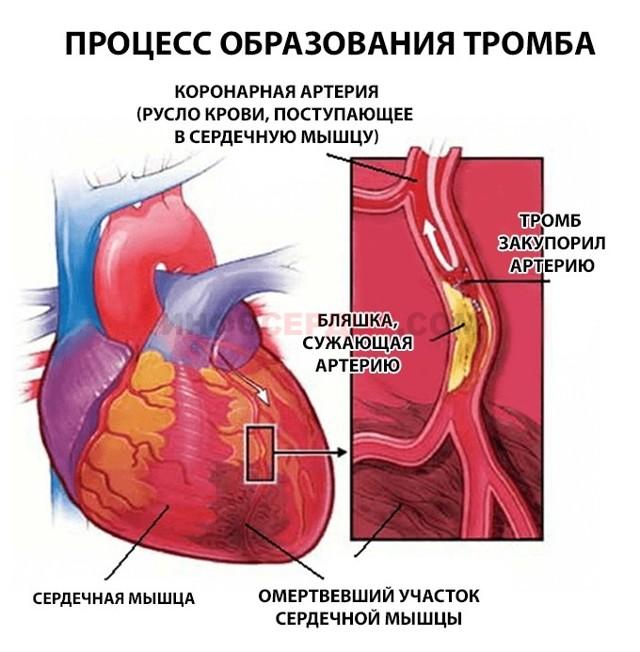 Методы профилактики образования тромбов