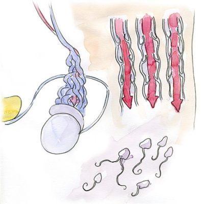 Симптомы, причины и методы лечения варикоцеле