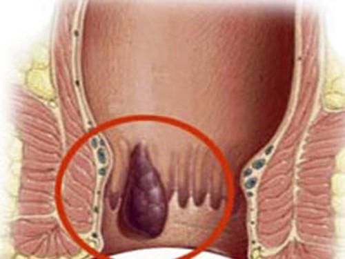 Симптомы и причины геморроя у мужчин
