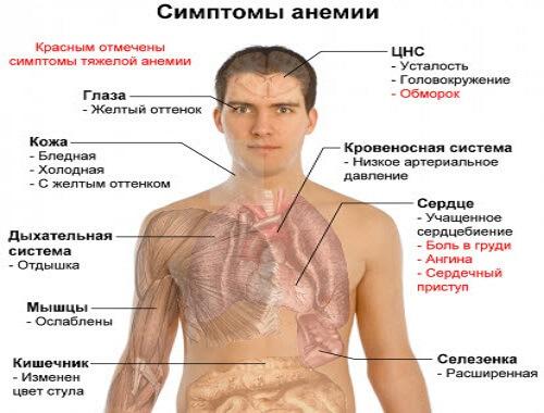 Лечим анемию в домашних условиях