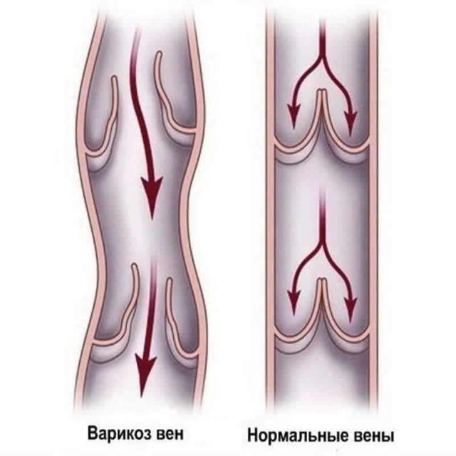 Проявление варикоза половых губ