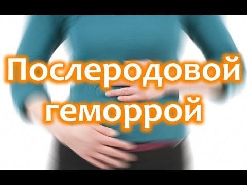 Эффективные свечи от геморроя при грудном вскармливании