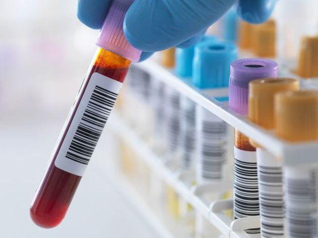 Причины повышенного содержания лимфоцитов в анализе крови