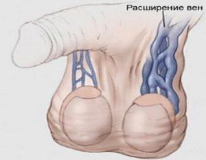 Операция на варикоз яичек