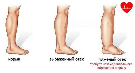 Текут ноги при сердечной недостаточности что делать