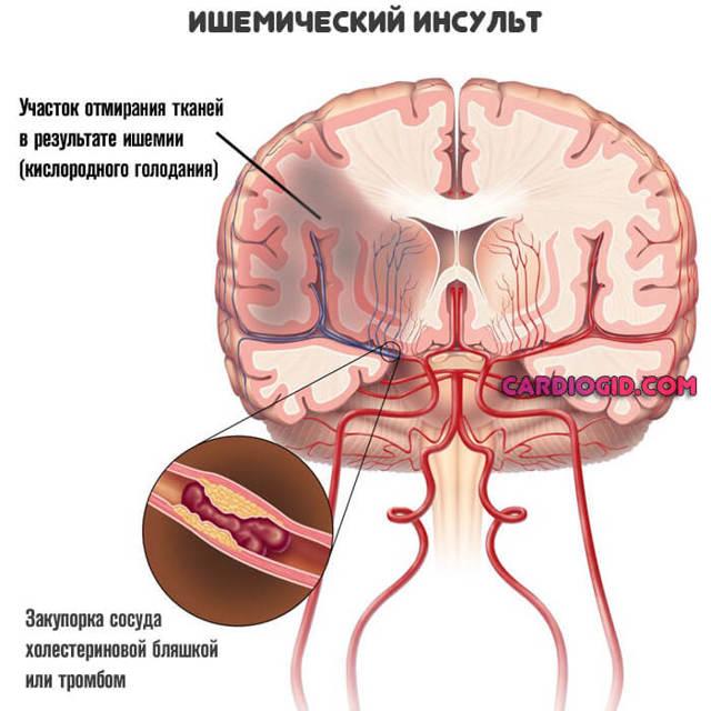Как проявляет себя микроинфаркт?