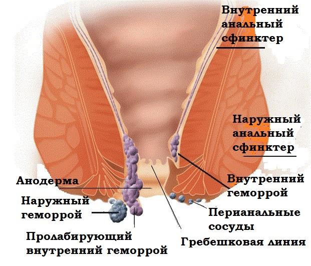 Причины, симптомы и лечение при выпадении геморроидальных узлов