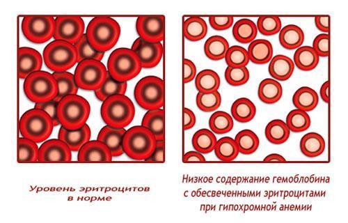 Особенности протекания гиперхромной анемии и ее симптомы