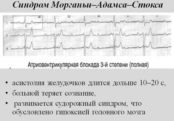 Причины, диагностика и лечение сниженного пульса