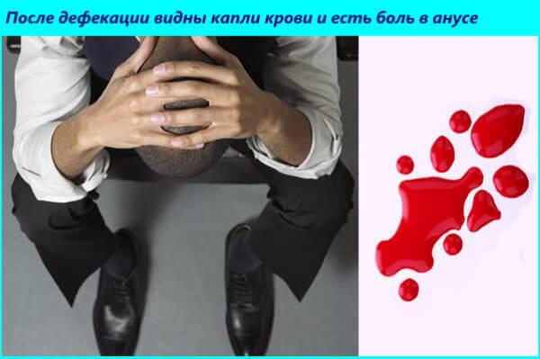Почему появляется кровь при дефекации при геморрое?