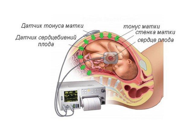Зачем во время беременности проводится ЭхоКГ сердца плода?