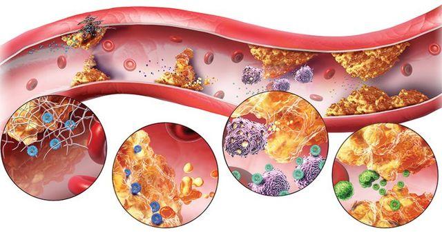 Лечебные свойства и применение красного клевера от холестерина