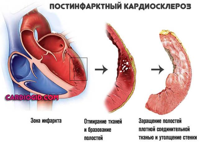 Симптомы, методы лечения и прогноз при мерцательной аритмии