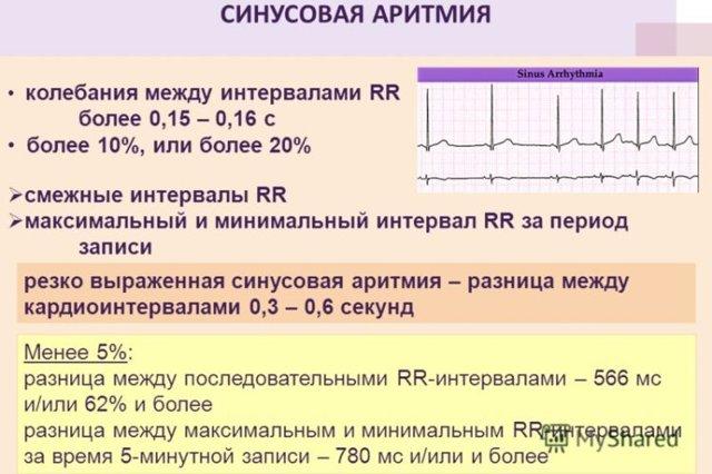 Показания к проведению и правила расшифровки результатов ЭКГ
