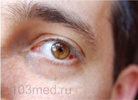 Красный глаз, лопнул сосуд — что делать?