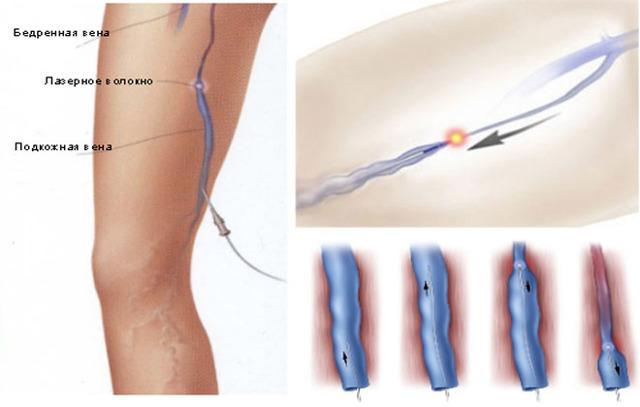 Виды операций на венах ног, реабилитация, последствия