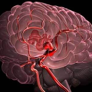 Насколько опасен и как лечится геморрагический инсульт?