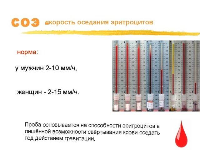 Причины изменения показателя СОЭ в анализе крови