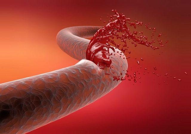 Чем опасна тромбоцитопения во время беременности?