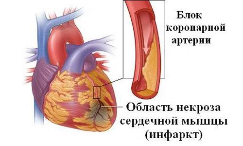 Обширный инфаркт что это такое