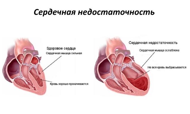Нормализация работы сердца при помощи средств народной медицины