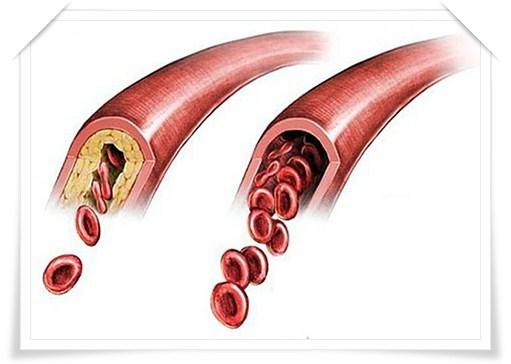 Атеросклероз сосудов излечим?